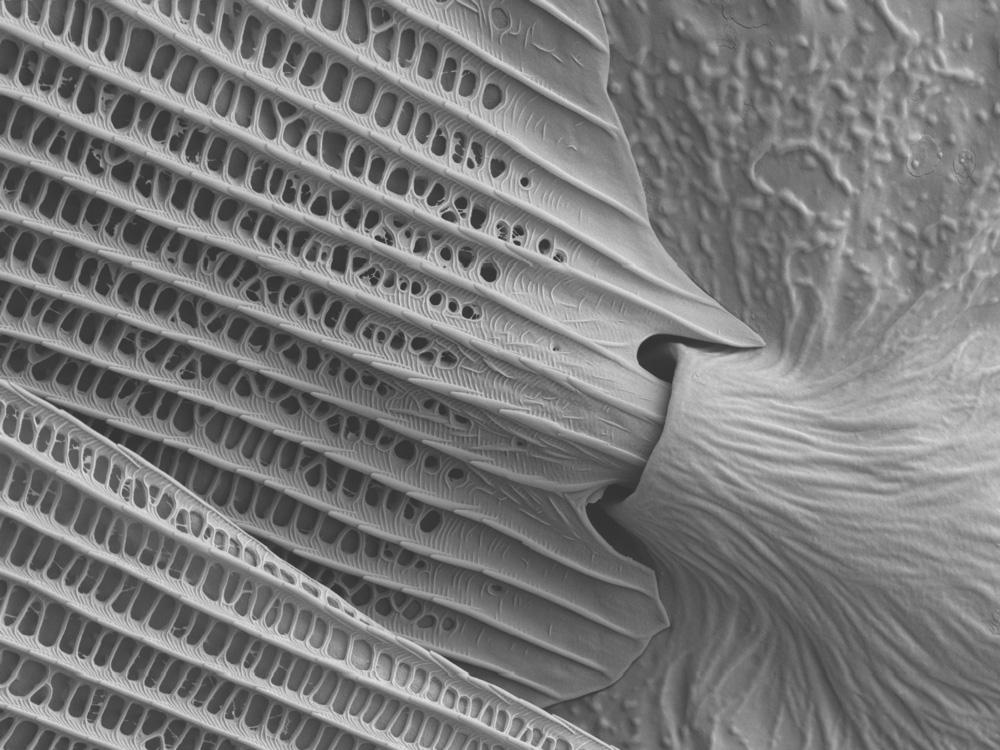 بافت پر پروانه در میکروسکوپ الکترونی